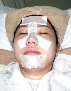 After application of the blackhead gel