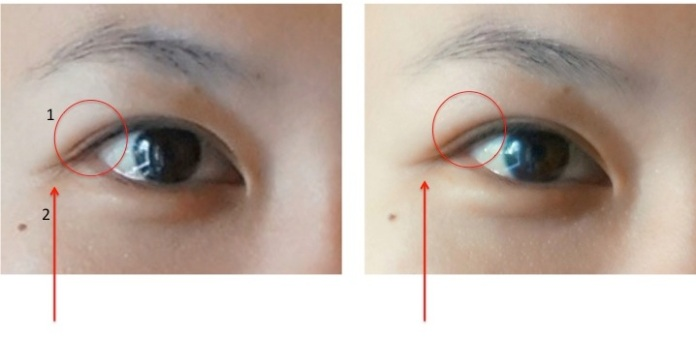 (Left: BEFORE Blue Therapy Eye. Right: AFTER Blue Therapy Eye) Pictures have not been digitally altered.