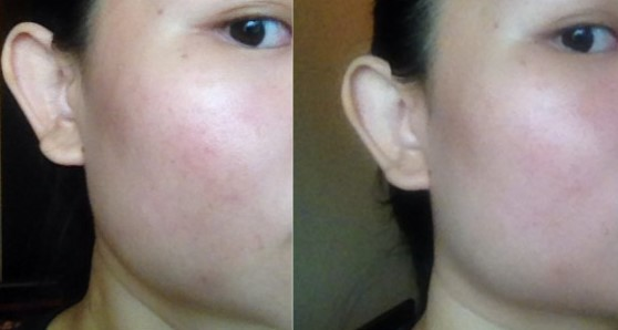 Before (left) and After (right). The marks on my cheek are clearly less faint after the mask. Again, images have not been touched up in any way.
