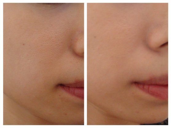 Before (left) and after applying the Snowise Whitening Essence BB.