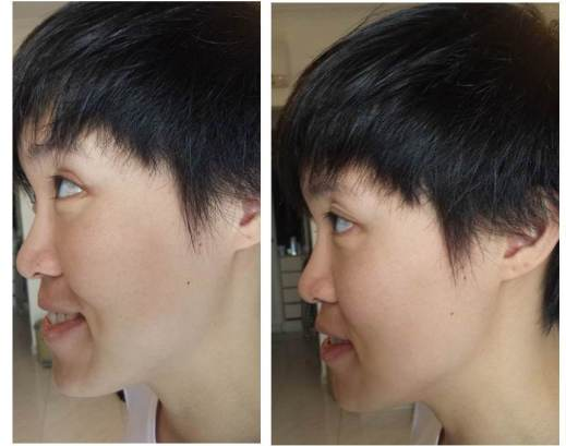 Before: No makeup After using Micro-Blur Skin Perfector: Redness and enlarged pores look a lot less obvious